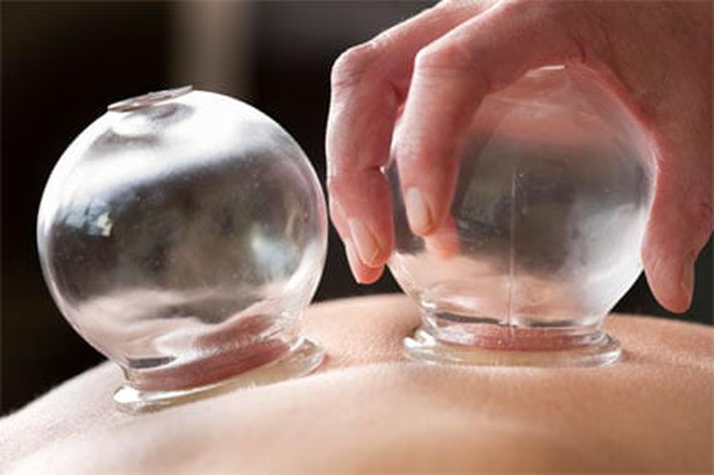 S Acupuncture
